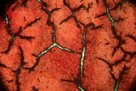 blood clot: The blood clot seen under the microscope Stock Photo