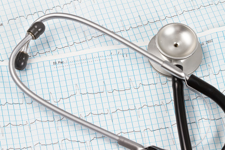 Stethoscope over an ECG chart