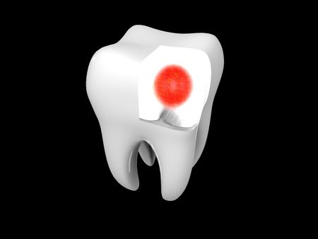 3D cartoon illustrating toothache with a red halo Stock Photo