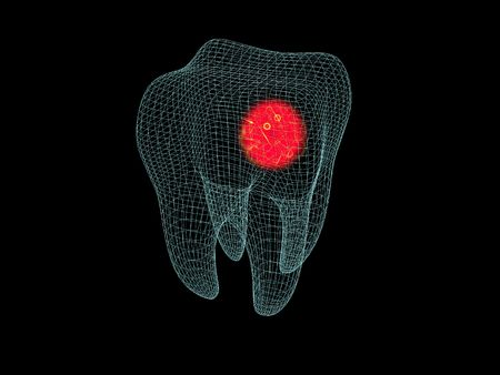 3D cartoon illustrating toothache with a red halo photo