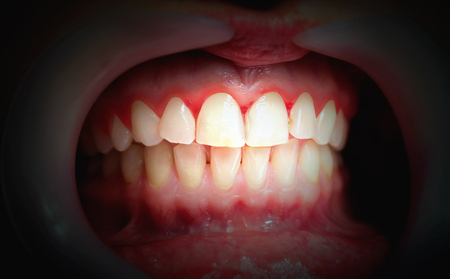 Mouth with bleeding gums on a dark background. Close up. Stockfoto