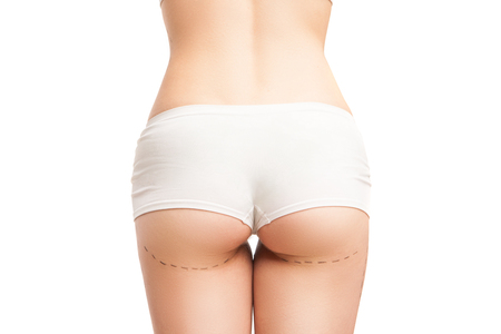 slim women: Unrecognizable woman in white panties with liposuction outlines.Isolated