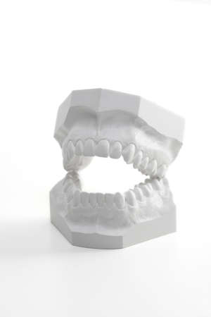 dentition: Profil view on a white denture model, made of hard plaster