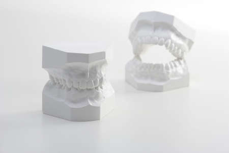 Two denture models.