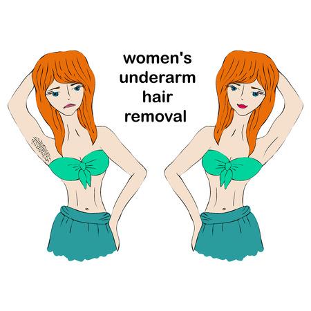 La donna di bellezza del fumetto fa l'epilazione prima e dopo. Concetto di depilazione ascellare femminile. Archivio Fotografico - 95503863