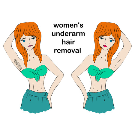 Cartoon beauty woman do epilation before and after. Concept of womens underarm hair removal. Illustration
