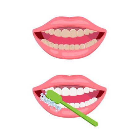 Dirty and clean teeth. Teeth cleaning and oral hygiene concept. Open mouth with green toothbrush. Vector icon about dental care, how to brush teeth.