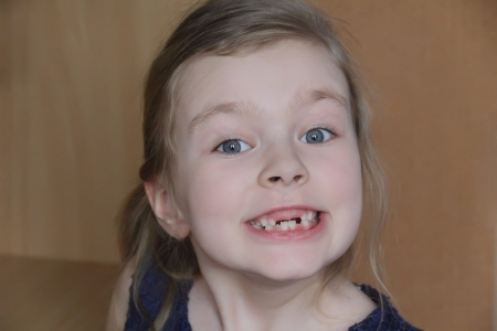 bared teeth: Portrait of beautiful child without front teeth