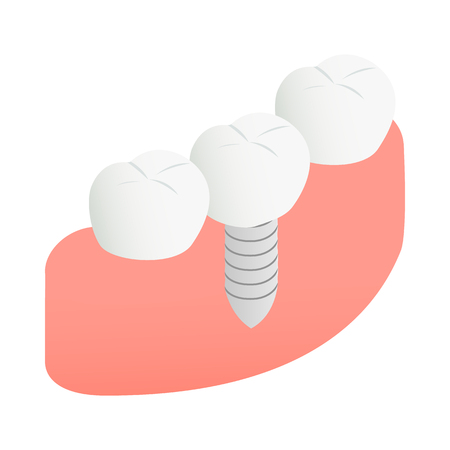 carious: Tooth Implant icon in isometric 3d style on a white background