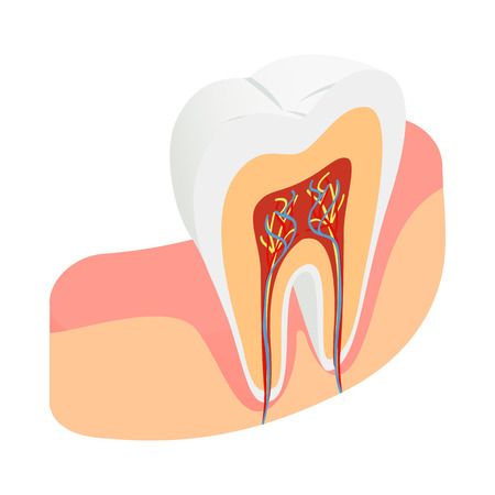 carious: Tooth cross section icon in isometric 3d style on a white background