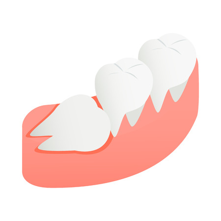 carious: Crooked tooth icon in isometric 3d style on a white background Illustration