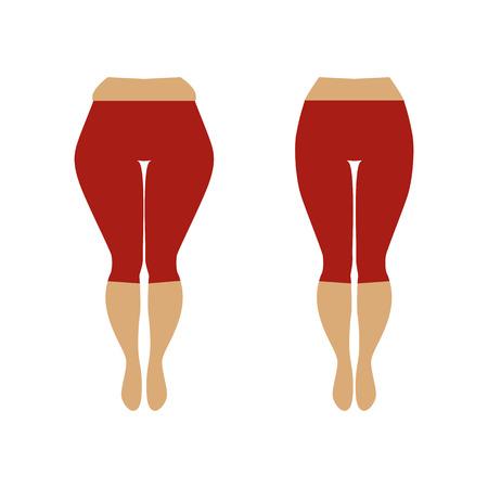 Illustratie van een vrouw met cellulitis en een soepele huid. Gewichtsverlies concept. Dikke en slanke damesheup.
