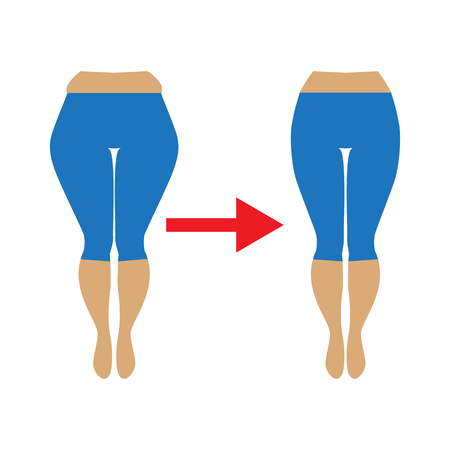 buttocks: Illustration of a woman with cellulite and smooth skin. Weight loss concept. Fat and slim womans hip. Illustration