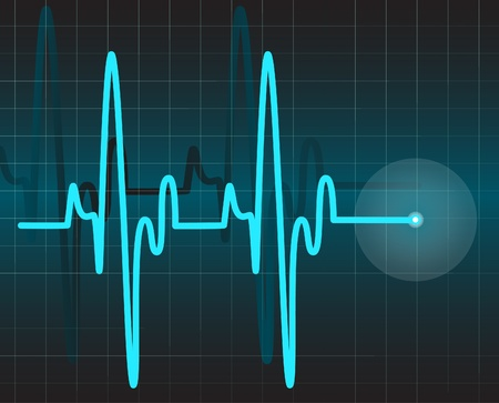 Electrocardiogram Illustration