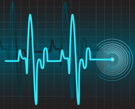 cardioid:  Electrocardiograma