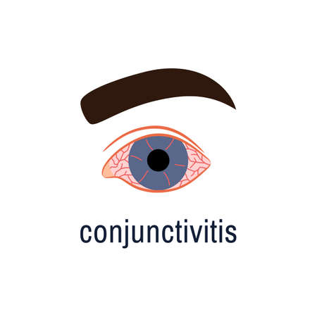 Conjunctivitis icon isolated on white