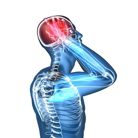 headaches: Xray of a man having headache