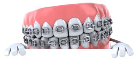 Zahnersatz Charakter mit Zahnspange Standard-Bild - 81107890