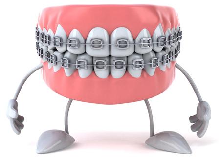Dentures karakter met beugels