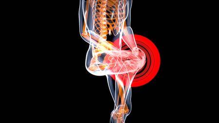 Knee sprain or ache leading to pain 3D illustration Archivio Fotografico - 136975238