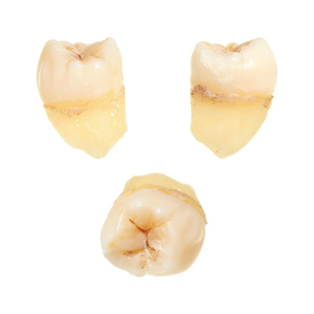 Human tooth isolated on white background Stock Photo