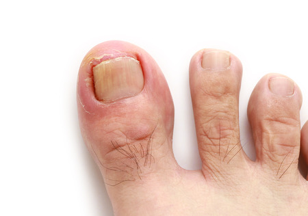 Ingrown toenail isolated on white background Imagens