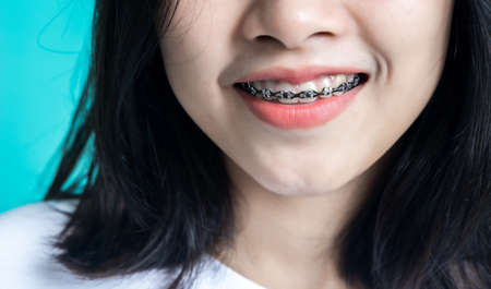Asian woman wearing detal braces pointing to tooth sample and smiling with her healthy white teeth isolated shot on blue blackground.