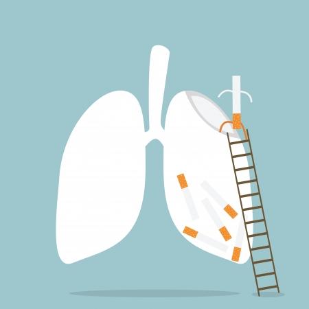 cancer de pulmon: Dejar de Fumar