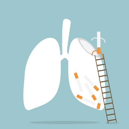 bronchus: Stop Smoking Illustration