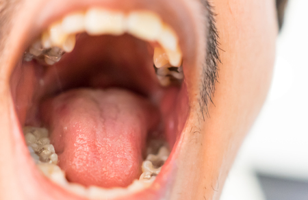oral cancer: Unhealthy Mans mouth and teeth closed up shop
