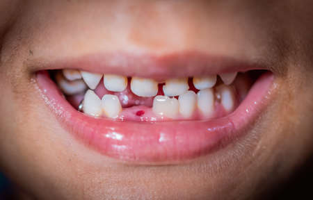 Boy with one missing teeth smile to show his missing teeth. Banco de Imagens