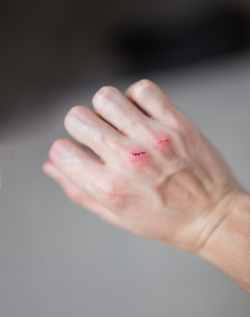 Fresh wound and blood on the right hand from a bite Dog. Stock Photo