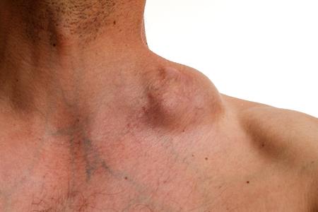 Hodgkin tumor - Bulky tumour - Hodgkin lymphoma - cervical swelling