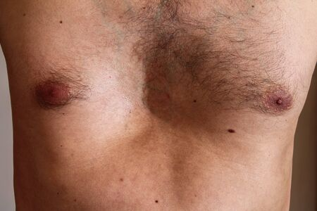 Chest deformity, birth defect. Strong deformity. Physical disability. pectus excavatus Imagens