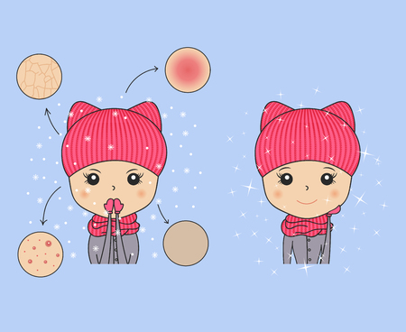 Beautiful woman in cozy hat showing winter skin problems. Needs cosmetic procedures. Young girl portrait. Cartoon character fixing skin problems. Vector illustration. Spa beauty theme.