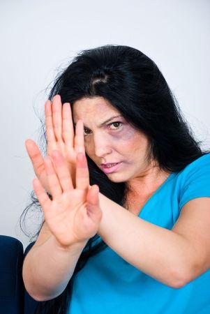 abusing: Abusado Mieda mujer con moretones en la cara, sentado y mostrando detener las manos