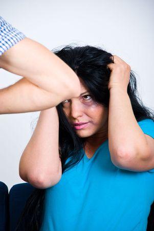 abusing: Miedo mujer maltratada con hematomas en su rostro la celebraci�n de las manos sobre la cabeza
