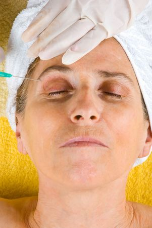 Senior woman being injected with botox in her eyebrows photo