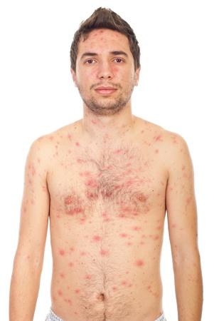 varicela: Joven con varicela aislada sobre fondo blanco