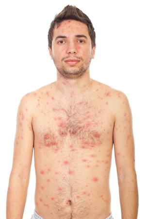 varicella: Young man having chickenpox isolated on white background