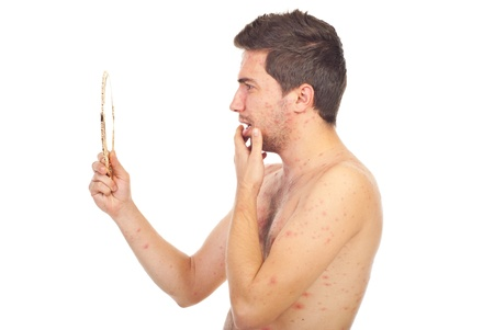 varicela: Hombre con varicela mirando con cara sorprendido en un espejo aislado sobre fondo blanco Foto de archivo