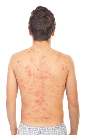 caucasian fever: Back of man with chickenpox isolaed on white background