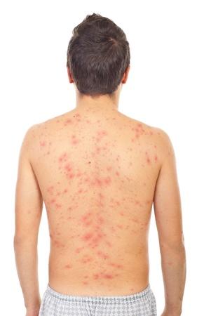 varicela: Parte posterior del hombre con isolaed de varicela en fondo blanco