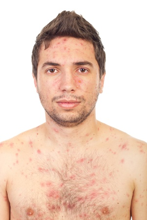 Close up of  man face with chickenpox isolated on white background photo