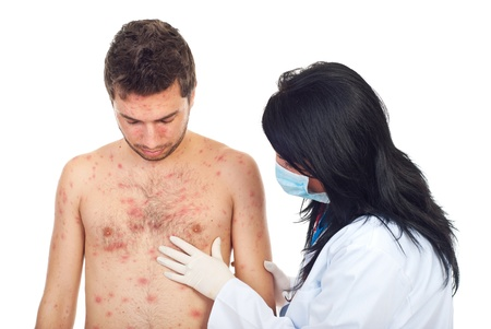 epidemiology: Doctor woman with mask and gloves examine  skin rash to a man with chickenpox isolated on white background
