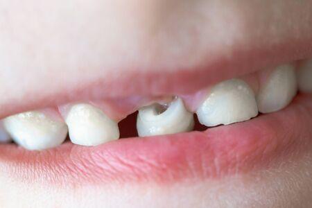 Dent de bébé, gros plan sur la dent qui tombe en macro.