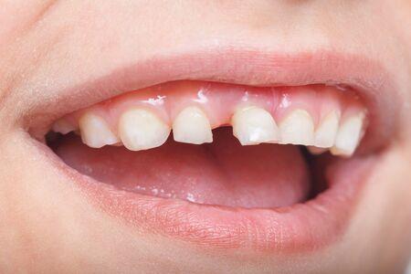 Dent de bébé, gros plan sur la dent qui tombe en macro. Banque d'images