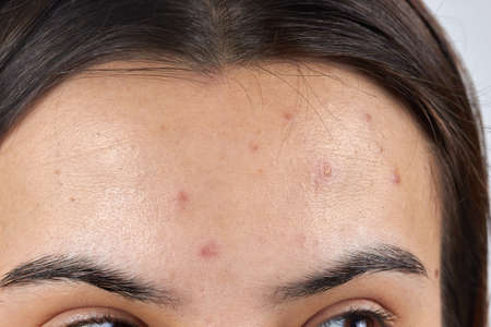 face close-up of redness and pimples skin cleansing.