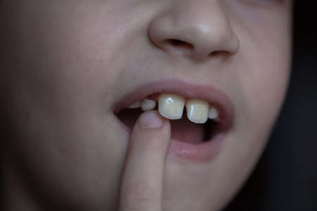 loss of a baby tooth in an eight-year-old child, at the last stage