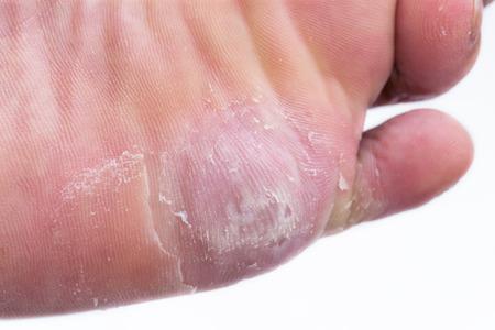 manos y pies: de ma�z a pie